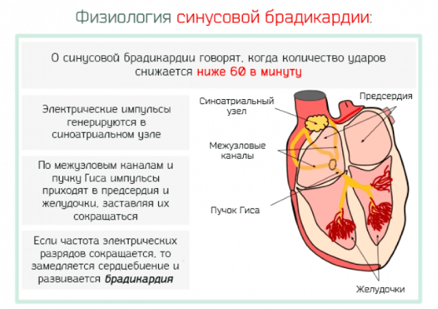 Влияние редкого пульса на сердце