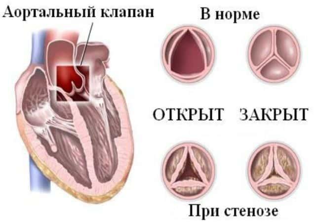 Сочетанный аортальный порок сердца аускультация симптомы