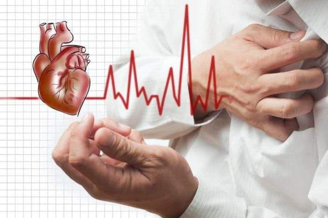 При инфаркте миокарда могут развиться