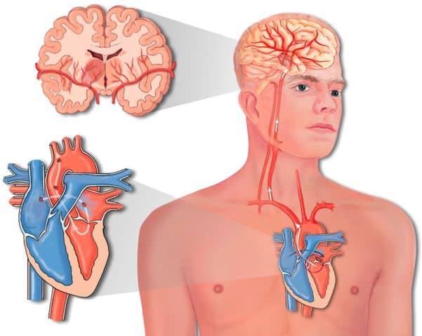 что такое инсульт инфаркт и их причины
