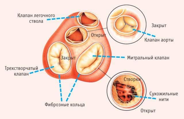 Комбинированный и сочетанный аортальный порок сердца с преобладанием стеноза что это