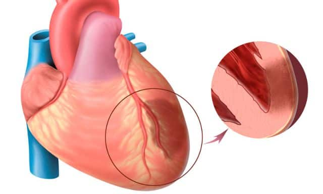 Инфаркт миокарда вот такой рубец