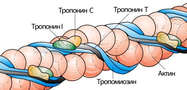 Причины повышения тропонина кроме инфаркта