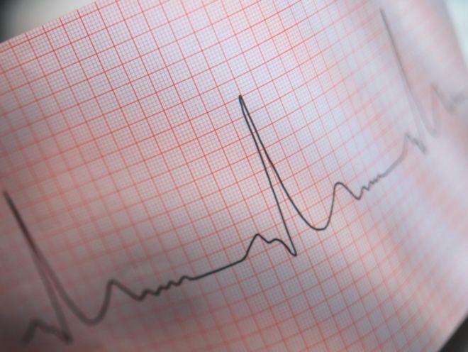 Чем грозит брадикардия сердца