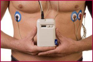 Аппарат для сердца