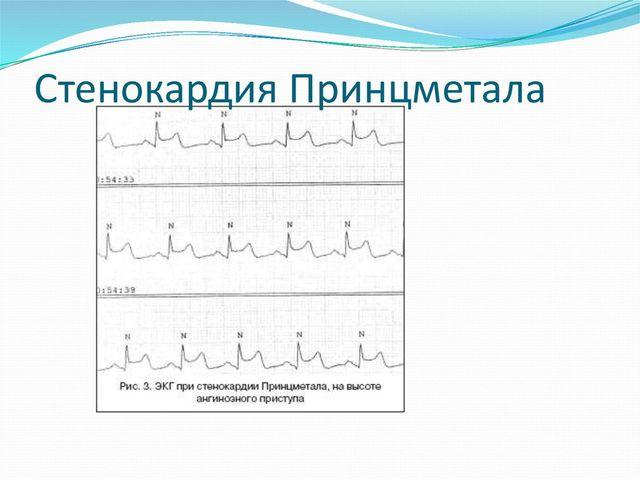 Стенокардия Принцметала: причины, симптомы, диагностика и лечение