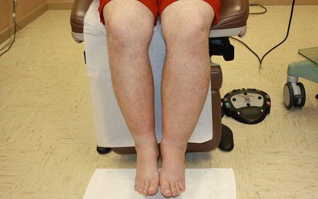 Отеки ног при сердечной недостаточности у пожилых