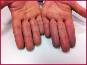 Синеют пальцы