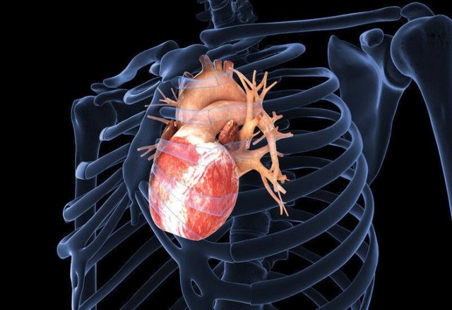 Причины развития и методы терапии вторичной кардиомиопатии