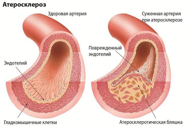 Атеросклеротический кардиосклероз что это за диагноз особенности лечения причина смерти пациентов