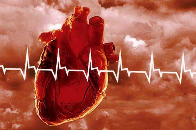 ИБС, атеросклеротический кардиосклероз - что это, взаимосвязь заболеваний