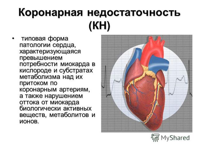 Инфографика 1