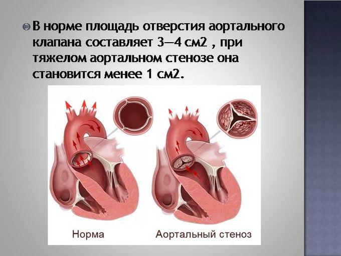 Инфографика 2